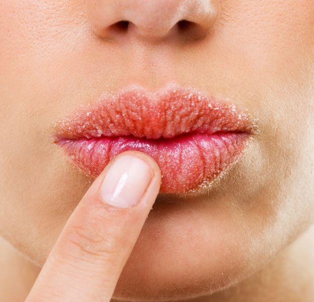 Anti-âge - Lèvres - Quels sont les effets du tabac sur la déshydratation des lèvres et leur vieillissement - Dermophil